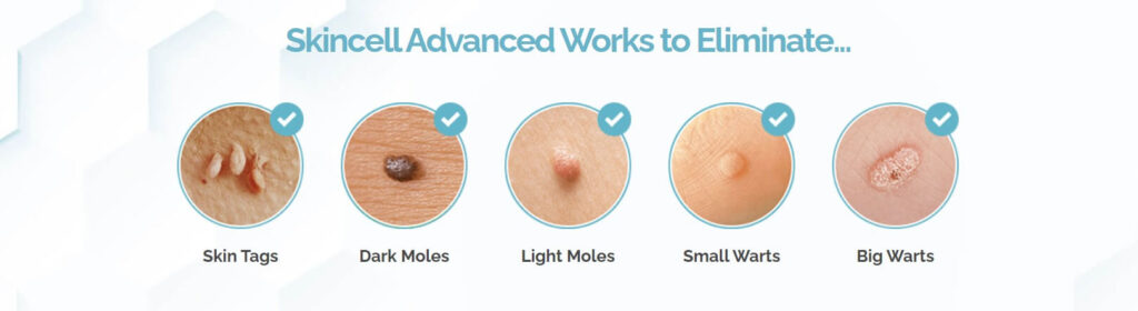 skincell works. skin tag