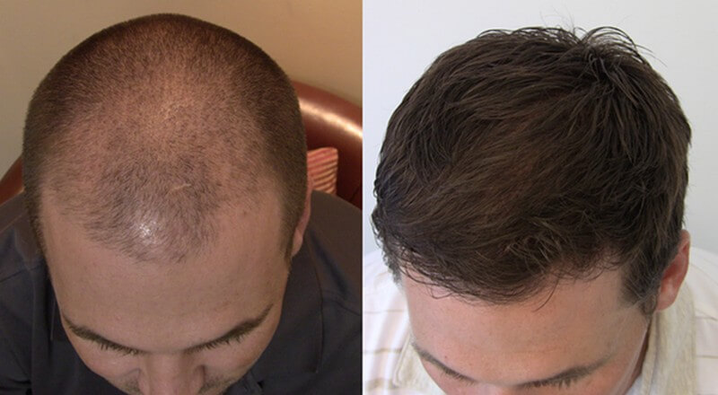 Folital before and after